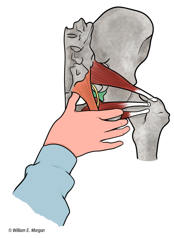 Sacrotuberous Ligament and the Pudendal Nerve - Dr ...