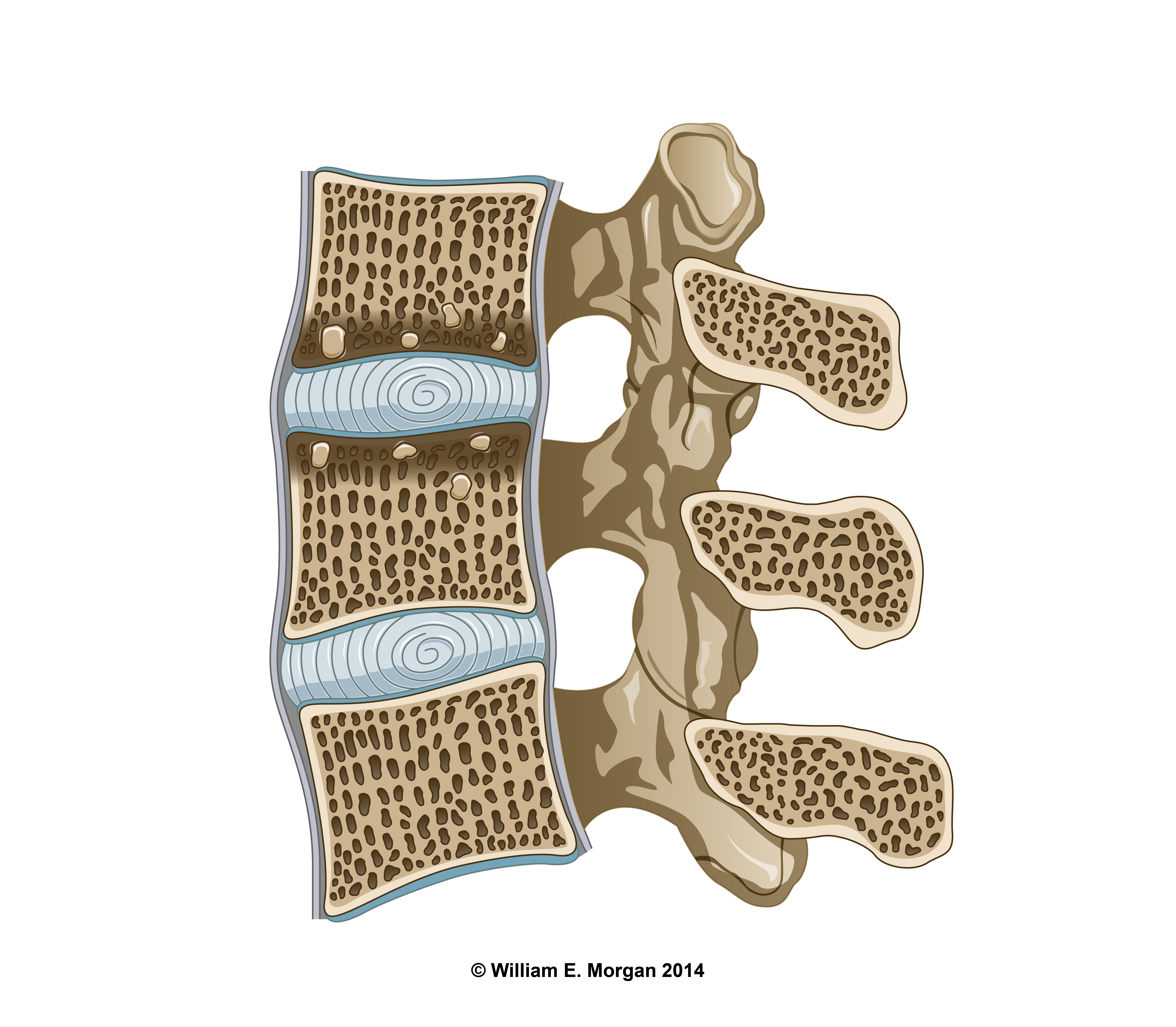 Sclerotic changes of the cortical bone and thickening of the endplates are indicative of Modic 3 changes.